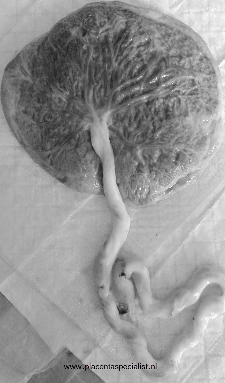 Placenta levensboom