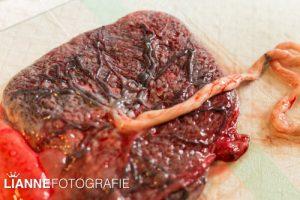 Placenta (9 van 114)klein
